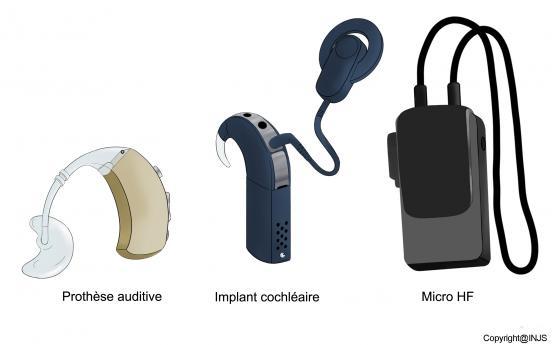Les appareils auditifs